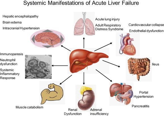Liver Failure Learnpicu